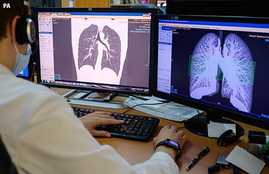 Lung scan during the covid-19 pandemic